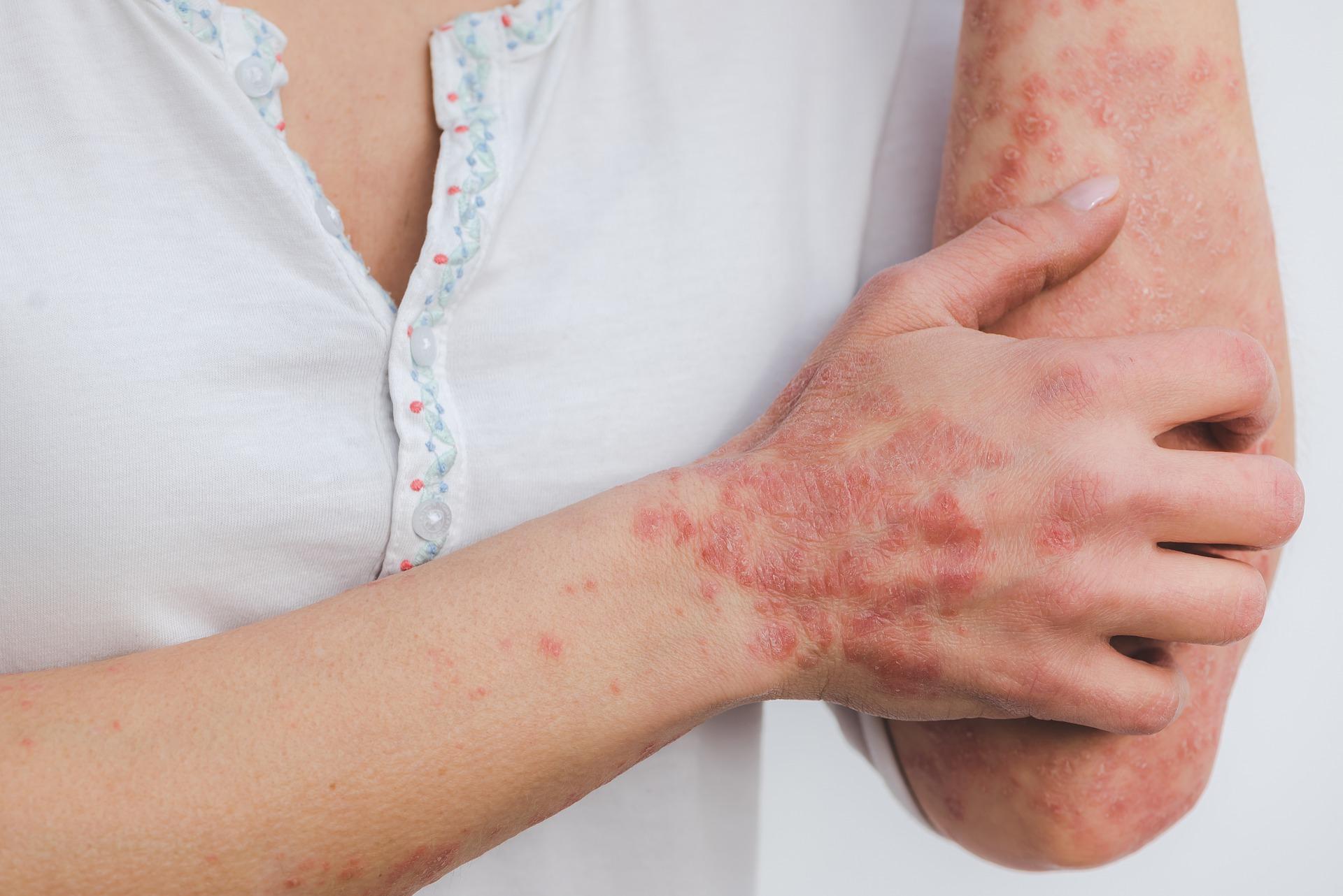 Quelles sont les solutions naturelles pour soigner le psoriasis ?